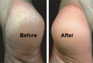 Callus peel at The Retreat